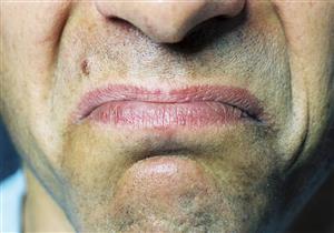 احذر مرارة الفم.. تنذر بمرض خطير