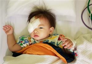 سرطان العين عند الأطفال.. طبيب يوضح أعراضه وكيفية علاجه