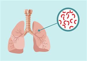 يصيب الجهاز التنفسي.. تفشي مرض خطير في كندا
