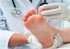 السكري.. دليلك لحماية القدمين من مضاعفات المرض