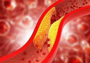 أسباب ارتفاع الكوليسترول عند الشباب وعلاجه