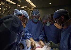 حقائق مثيرة.. كيف نجح فريق الأطباء في زراعة كلى خنزير لإنسان؟