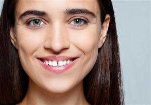 3 أسباب وراء وجود فراغات بين الأسنان.. تعرف عليها