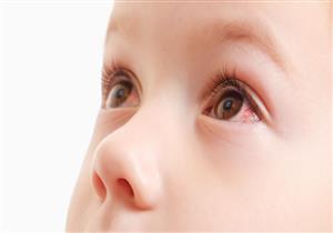 احمرار العين عند الأطفال.. الأسباب وطرق العلاج