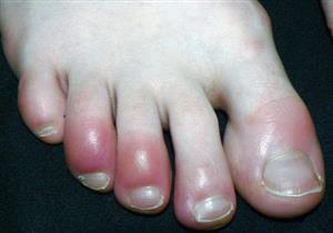 تورم الأصابع.. عرض جديد يصيب مرضى كورونا