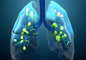 التليف الكيسي مرض وراثي يهدد أعضاء الجسم المختلفة.. إليك أبرز أعراضه