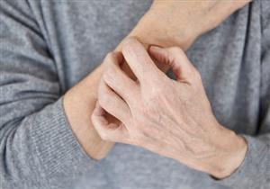 ترقق الجلد.. إليك أبرز الأسباب المحتملة وطرق العلاج