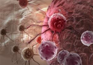 انتبه لها.. 5 أعراض غير متوقعة تكشف إصابتك بالسرطان
