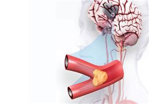 ماذا يحدث في جسمك عند الإصابة بالسكتة الدماغية؟