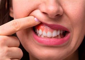 أبرزها فيتامين سي.. 5 مكملات غذائية تحمي لثتك من الالتهاب والنزيف