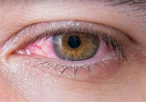 أسباب ظهور عروق حمراء في بياض العين.. هل تستدعي زيارة الطبيب؟