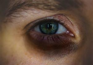 تنذرك بمرض خطير.. 7 أسباب وراء ظهور الهالات السوداء حول العينين