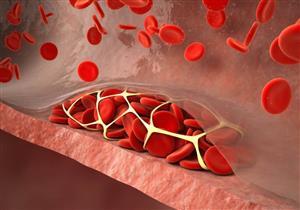 ٦ أسباب لإصابة الشباب بالجلطات الدموية (فيديوجرافيك)