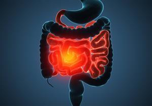 استشر طبيبك قبل استخدامها.. 6 طرق طبيعية لعلاج مرض كرون