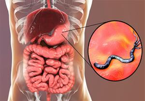 مضاعفاتها خطيرة.. هذا ما يحدث بجسمك عند إهمال علاج جرثومة المعدة