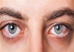 طبيبة تحذر من ظهور هذه العلامات على بياض العين