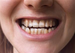 تفسد ابتسامتك؟.. هكذا تتخلص من بقع الأسنان البنية