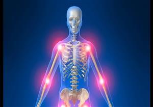أبرزها نقص الفيتامينات.. 8 أسباب شائعة لآلام العظام