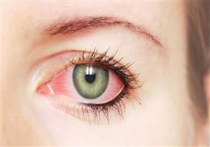 4 علاجات منزلية للتخلص من التهاب الملتحمة (صور)