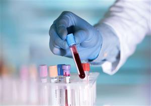 تحليل CRP.. هل يدل ارتفاعه على الإصابة بأمراض القلب؟