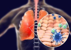 فيروس كورونا.. كيف يؤثر متحور دلتا على الرئتين؟