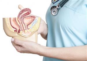 الرحم المقلوب.. إليكِ أسبابه وأعراضه وتأثيره على الحمل
