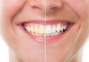 أطعمة تغير لون الأسنان.. وأخرى تحافظ على بياضها
