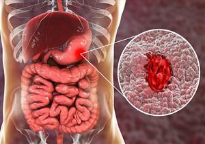 أعراض قرحة المعدة.. الرئيسية والأقل شيوعًا
