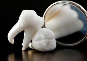 لكبار السن.. فقدان الأسنان يزيد خطر الإصابة بهذا المرض الخطير