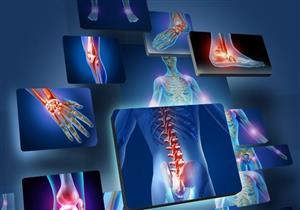 التهاب المفاصل الروماتويدي.. 9 عوامل تجعلك عرضة للإصابة به