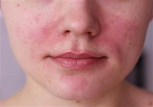 أسباب احمرار الأنف.. علاجات منزلية بسيطة لتخفيف حدته