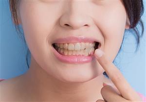 أطعمة ومشروبات تسبب اصفرار الأسنان.. ماذا تفعل لاستعادة بياضها؟