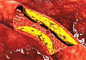 قائمة بأبرز الأطعمة المسببة لارتفاع الكوليسترول في الدم