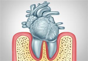 كيف تؤثر أمراض اللثة على صحة القلب؟