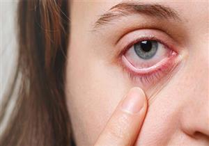 4 أمراض نادرة قد تصيب العين
