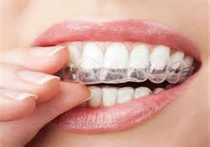 تقويم الأسنان الشفاف.. كل ما تريد معرفته