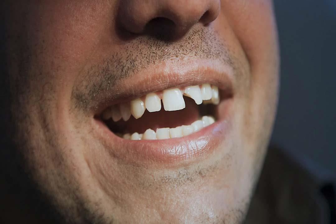 متى تحتاج الأسنان المكسورة لحشو عصب؟