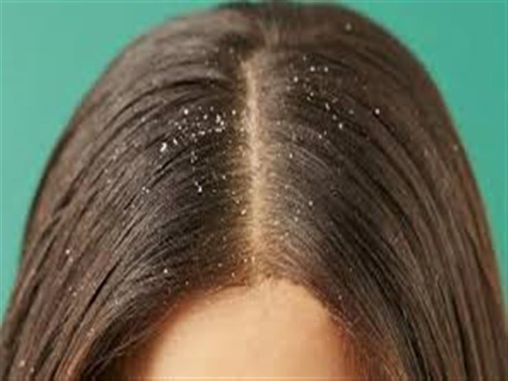 خل التفاح علاج فعال لقشرة الشعر.. إليكِ ضوابط استخدامه