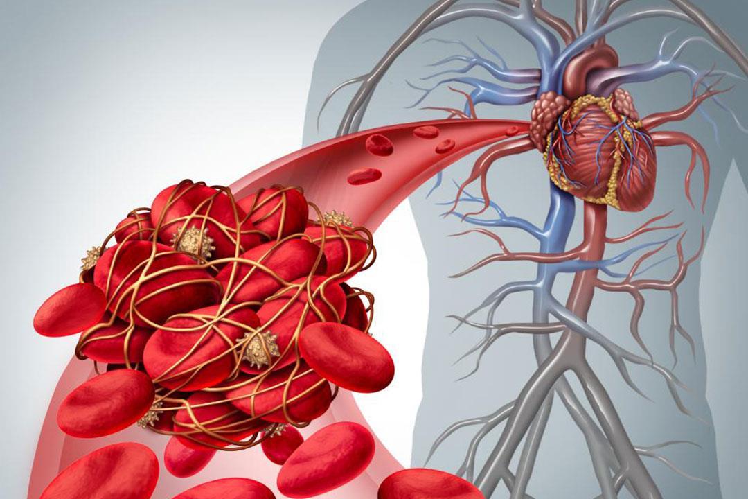 5 أطعمة ومشروبات تقي من الإصابة بتجلط الدم