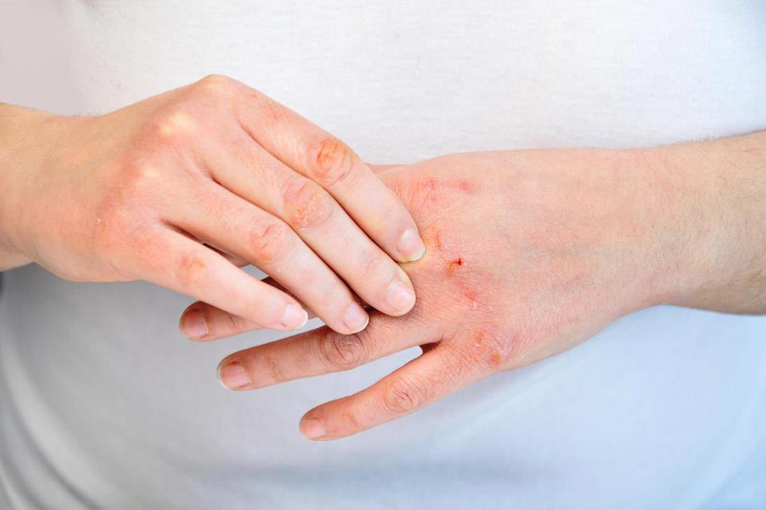 التهاب المفاصل الصدفي.. قائمة بالأطعمة المفيدة لتخفيف الأعراض
