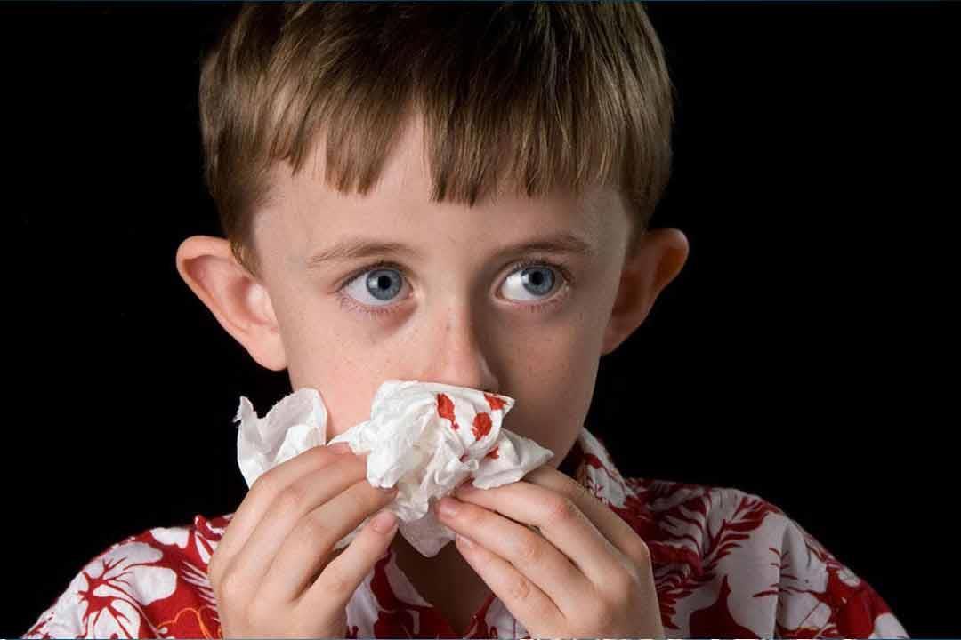 ما أسباب نزيف الأنف المستمر عند الأطفال؟.. إليك طرق علاجه