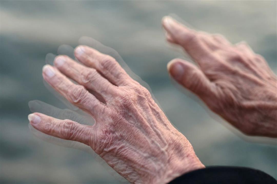 دواء الإقلاع عن التدخين يعالج  مرض باركنسون للنساء
