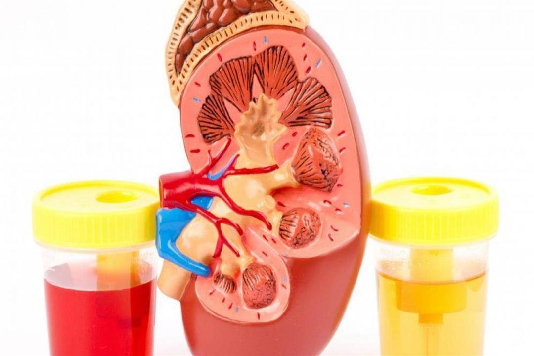 أسباب طبية مختلفة لوجود دم في البول منها التهاب المسالك البو الكونسلتو