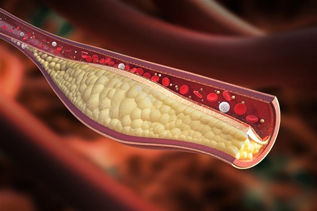 ألم اليدين والقدمين علامة على ارتفاع الكوليسترول في الدم