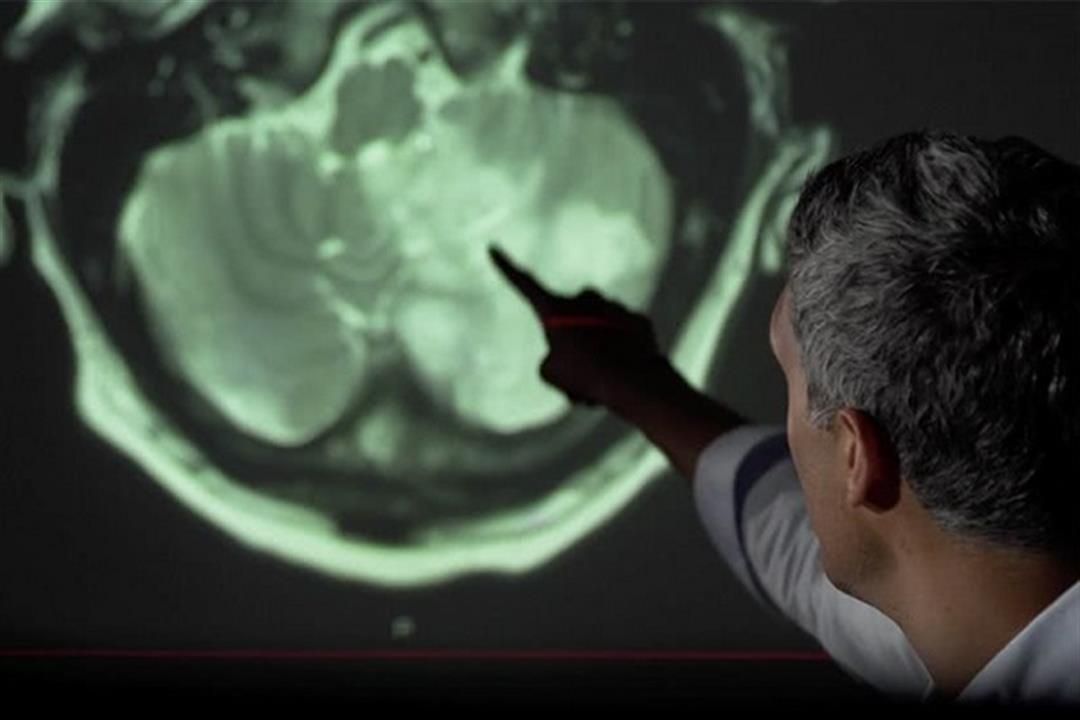 هل يؤثر فيروس كورونا على أدمغة المصابين به؟.. خبراء يجيبون