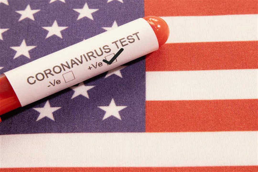 تسجيل أول إصابة بسلالة كورونا الجديدة في الولايات المتحدة الأمريكية