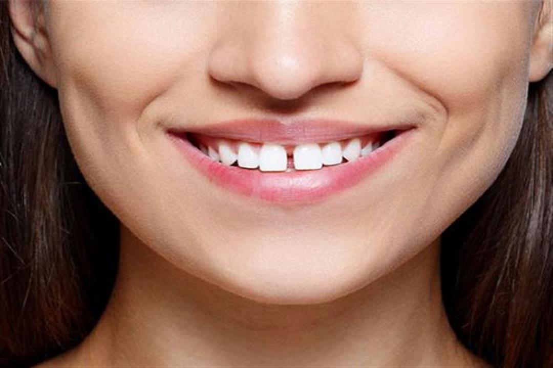 3 أسباب لظهور فراغات الأسنان.. منها أمراض اللثة