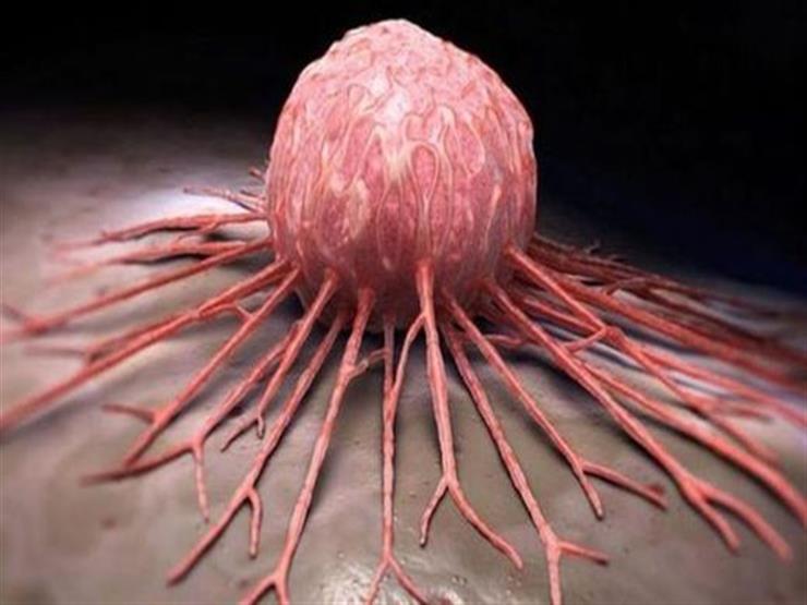 غير جرثومة المعدة 4 فيروسات مصدر الإصابة بالأورام الخبيثة مصراوى