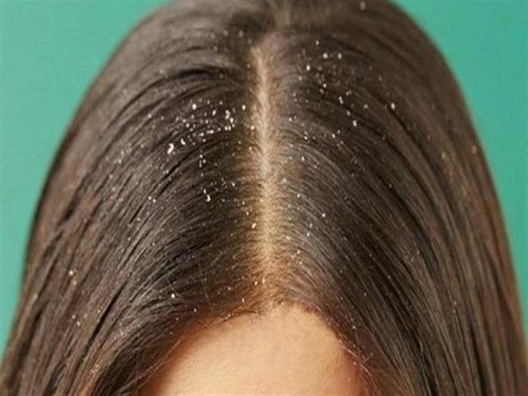 متى تشير قشرة الشعر للإصابة بمرض باركنسون؟