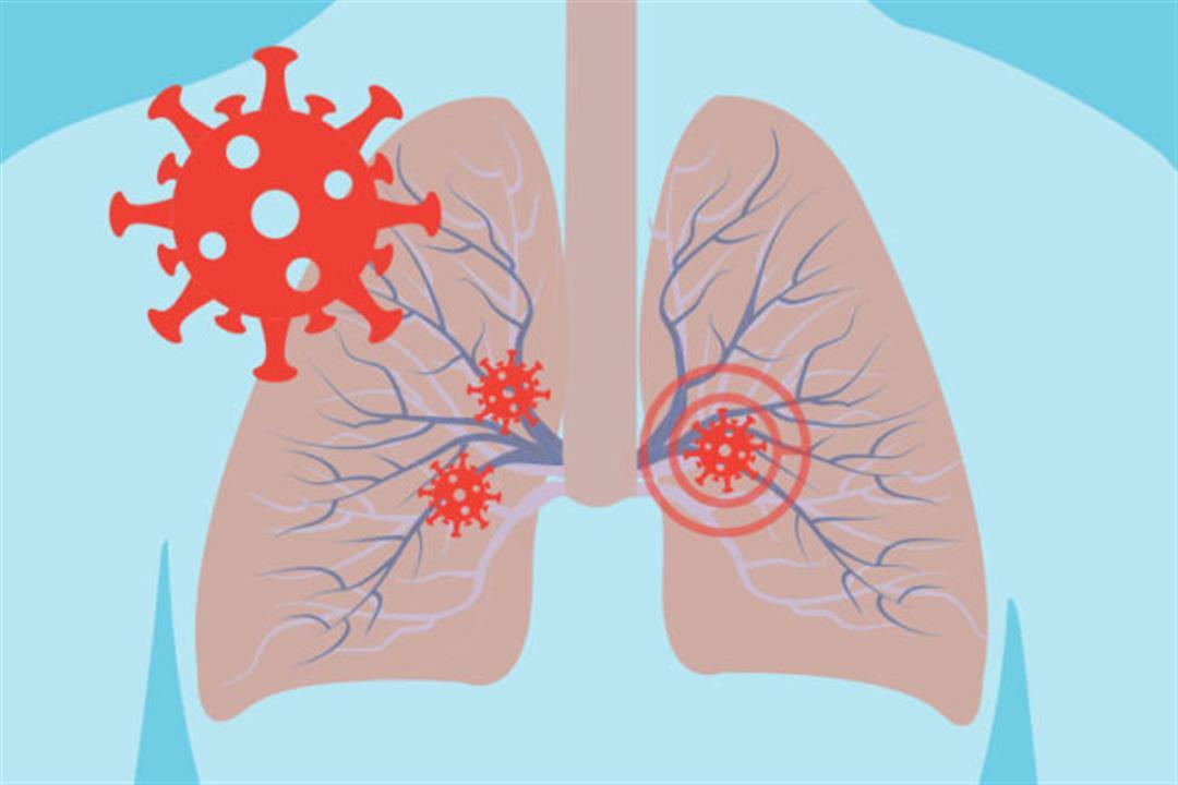 """دراسة: 1 من 100 مريض بكورونا يعاني من """"ثقب في الرئة"""""""